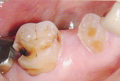 ToothWear1.jpg