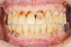 ToothWear2.jpg