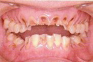 ToothWear3.jpg
