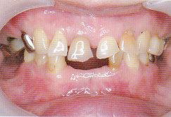 ToothWear4.jpg