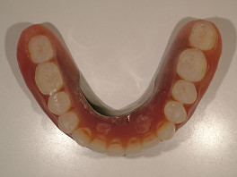下の入れ歯はこのようになっています。