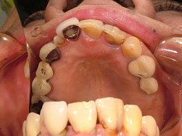 上の歯はこのような状態です